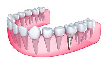 Dental Implants In Fond du Lac   Maury Family Dental