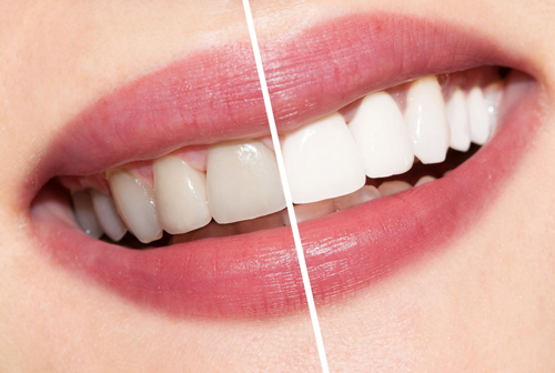 Teeth Whitening in Fond du Lac