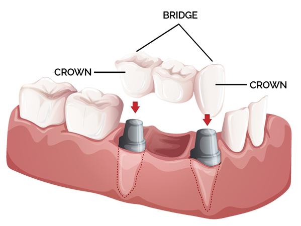fond du lac crowns & bridges
